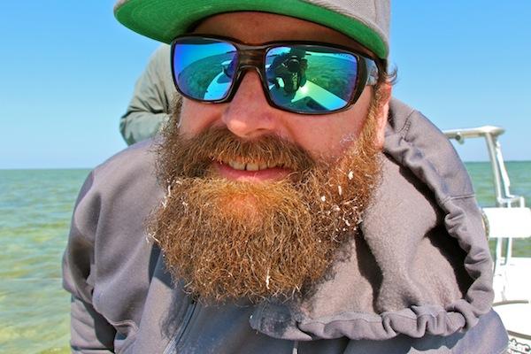 V beard